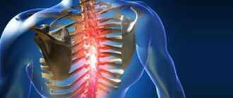Сколиоз грудного отдела позвоночника: классификация, симптомы, лечение