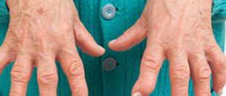 Серонегативный ревматоидный артрит: что это такое, симптомы, можно вылечить, лечение народными средствами