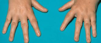 Аллергический артрит симптомы, диагностика, лечение, особенности у детей