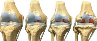 Остеохондроз коленного сустава: симптомы, степени, диагностика и лечение народными средствами