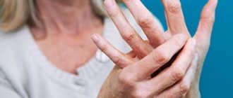 Лечение артроза и артрита: медикаментозные и народные средства