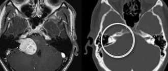 Невринома поясничного и грудного отдела позвоночника: симптомы, операция, риски, отзывы пациентов
