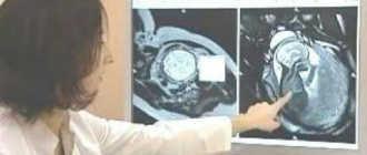 МРТ тазобедренных суставов открытого и закрытого типа время проведения, как делают МРТ детям и беременным