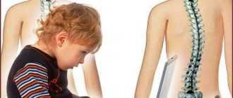 Искривление осанки у ребенка, школьника, как исправить, коррекция и исправление