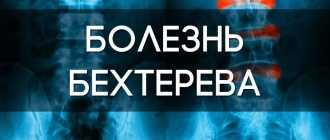 Болезнь Бехтерева: полное описание патологии, симптоматика, диагностика и лечение заболевания